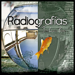 disco Radiografías, de Juan Carlos Prieto