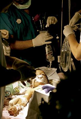 niño operado en el quirófano