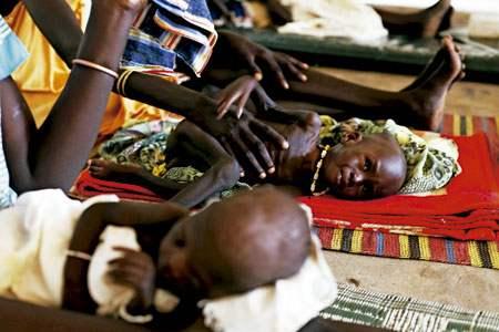 niños desnutridos en Sudán