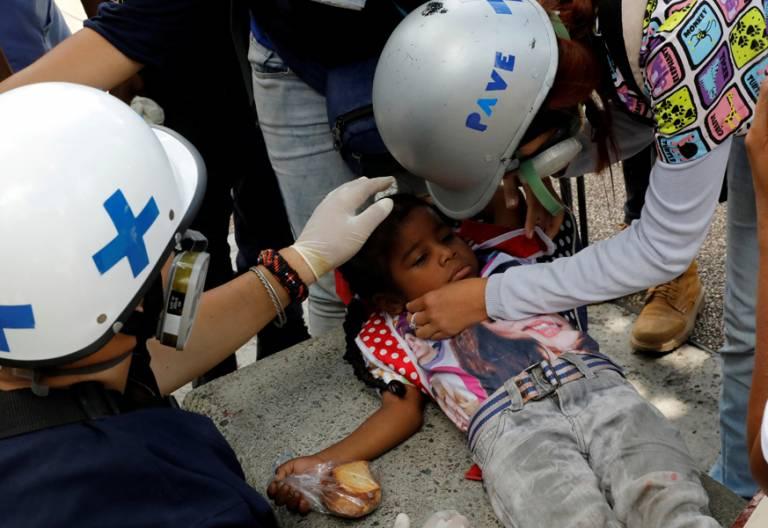 Venezuela niña sufre efectos de gas lacrimógeno durante una protesta en Caracas contra el Gobierno de Nicolás Maduro junio 2017