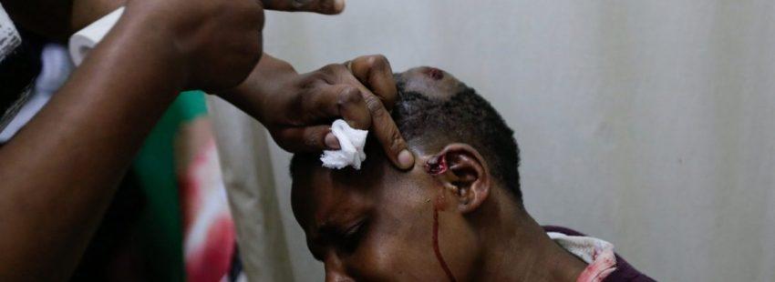 Un herido en Nairobi por los disturbios provocados tras las elecciones presidenciales de Kenia/EFE